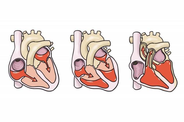 El sistema cardiovascular del cuerpo del deportista